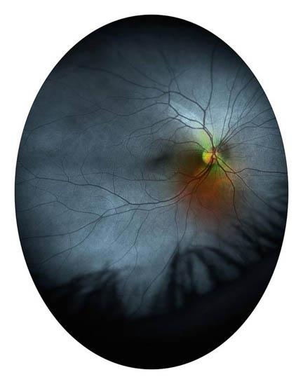 Eyeshine.jpg